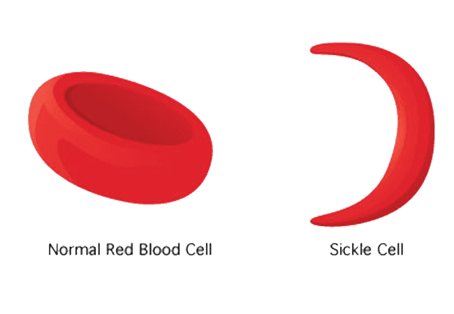 Sickle-Cell.png